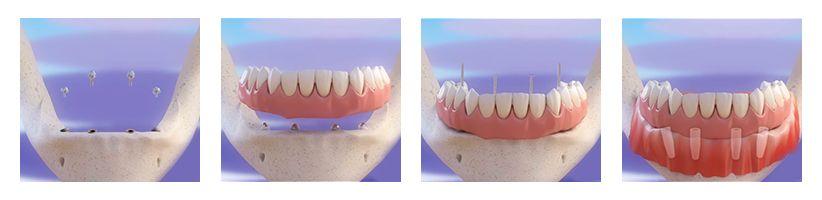 All On 4 Dental Implant Treatment Brooklyn