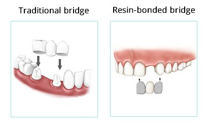 Types of Dental Bridges in Brooklyn