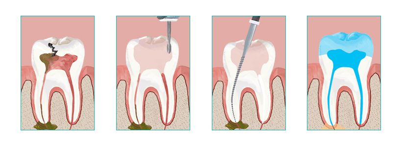 Root Canal Therapy in Brooklyn NY