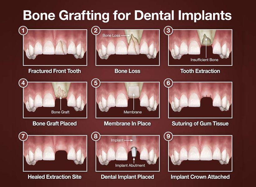 Bone Graft Procedure in Brooklyn