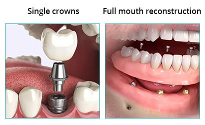 Types of Dental Implants in Brooklyn NY