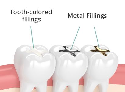 Tooth Colored Fillings vs Metal Fillings Brooklyn