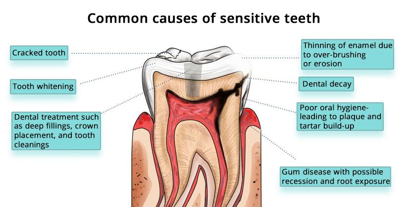 Tooth Sensitivity Treatment in Brooklyn
