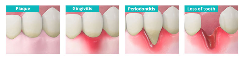 Periodontal Disease Prevention in Brooklyn