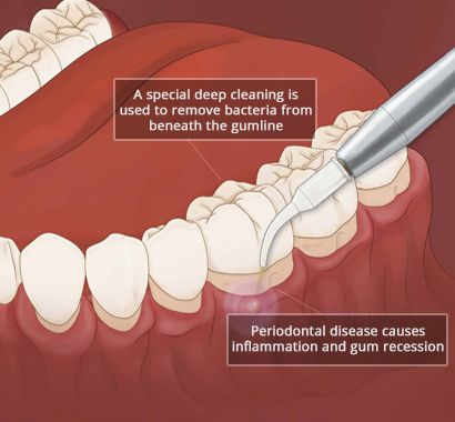 Severe Periodontal Disease in Brooklyn NY