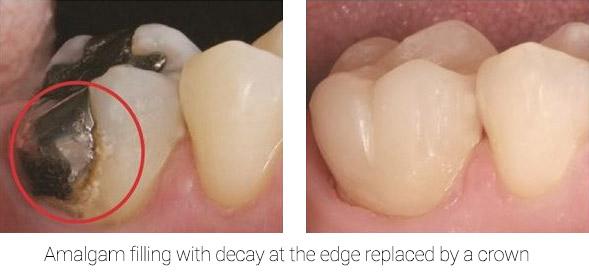 amalgam filling replaced with dental crown | Crown dentist in Brooklyn Dr. Umanoff