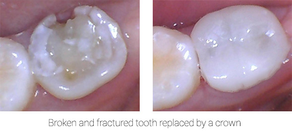 broken tooth replaced with dental crown | Crown dentist in Brooklyn Dr. Umanoff