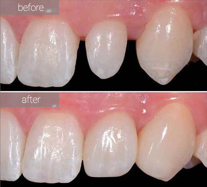 dental porcelain veneers before after | porcelain veneers dentist in Brooklyn