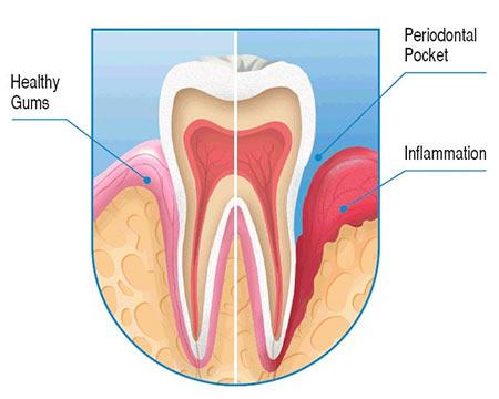 periodontal pockets treatment Brooklyn NY | LuxDen Dental Center