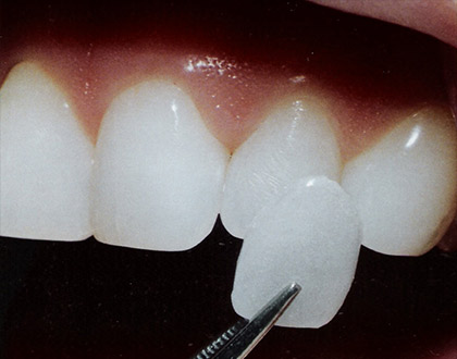 porcelain veneers application