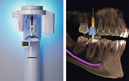 3-D imaging system for dental implants