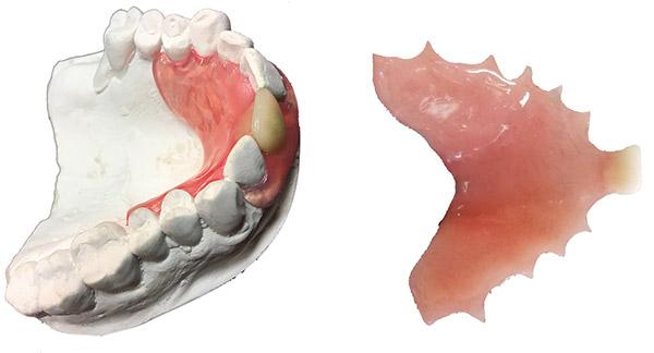 Dental Flipper