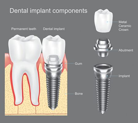 Dental Implant Components in Brooklyn