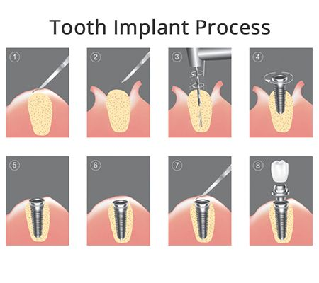Tooth Implant Process in Brooklyn