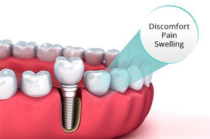 Do Dental Implants Hurt Near Me