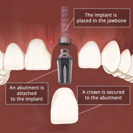 Front Tooth Implant Dental Implant Front Tooth In Brooklyn Ny