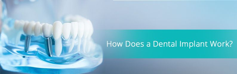 How Does a Dental Implant Work Brooklyn