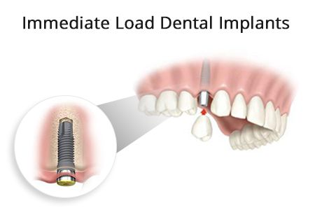 Immediate Load Dental Implants in Brooklyn