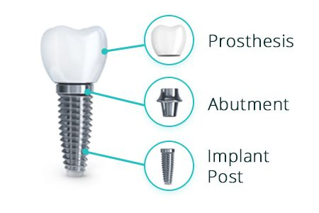 Components of Dental Implants