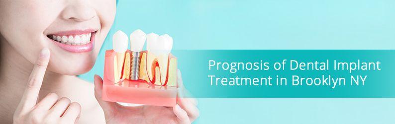 Prognosis of Dental Implant Treatment in Brooklyn NY