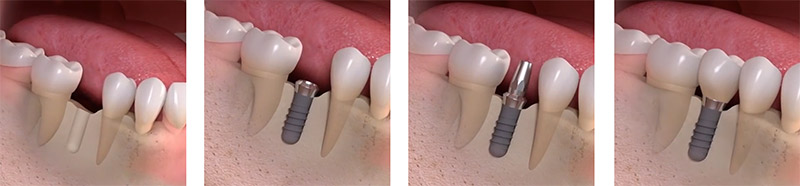 Replacing Single Tooth in Brooklyn NY