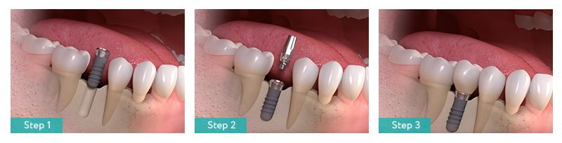 Placing Dental Implant in Brooklyn NY