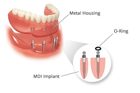 Why Choose Mini Dental Implants