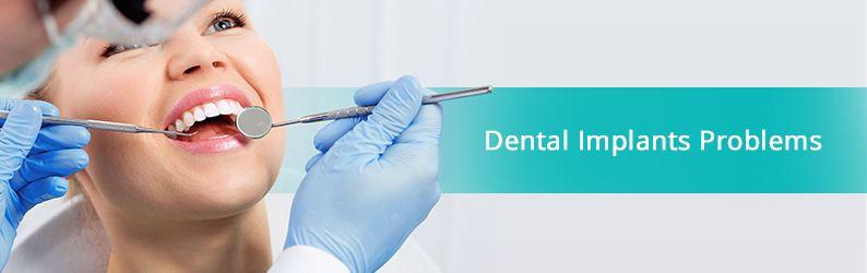Dental Implant Problems & Risks