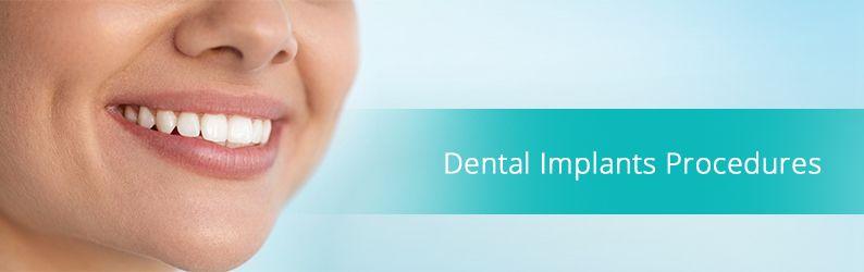 Dental Implants Procedures in Brooklyn