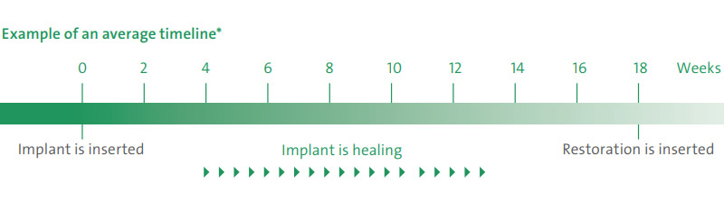 dental implants timeline