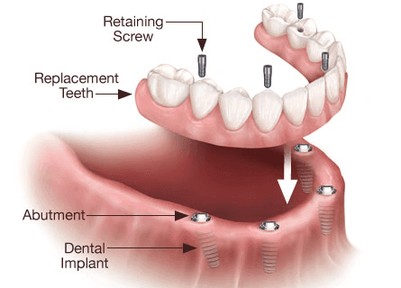 Denture Implants in Brooklyn NY