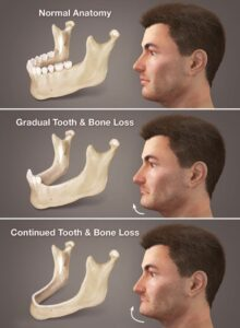 Replacing Multiple Teeth in Brooklyn NY