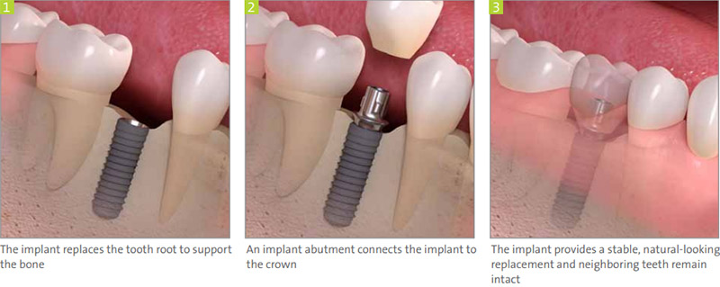 single tooth implant | replace missing teeth in Brooklyn