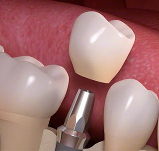 teeth in an hour implant dentist Brooklyn NY