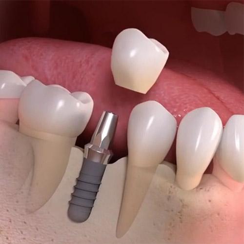 teeth in an hour implant dentist Brooklyn NY