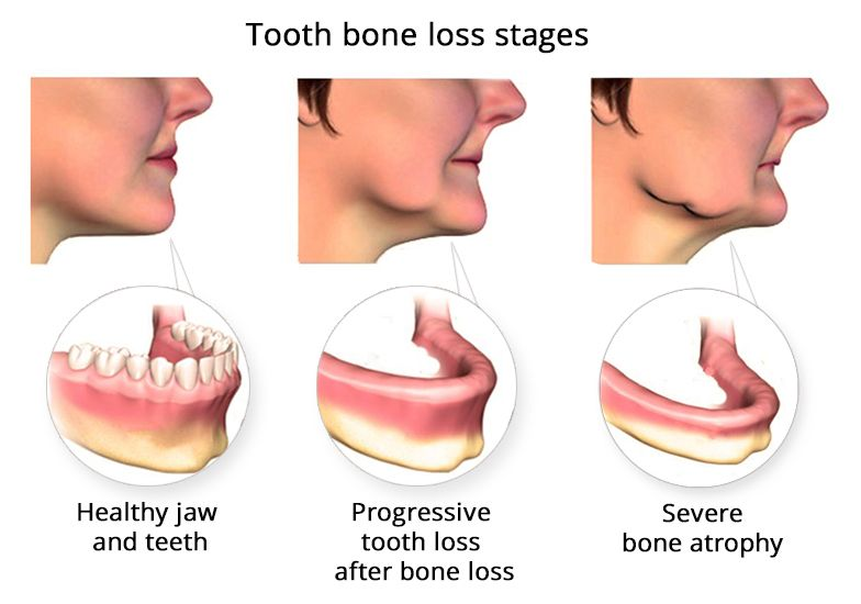 Tooth Bone Loss Luxden Dental Implants Center In Brooklyn Ny