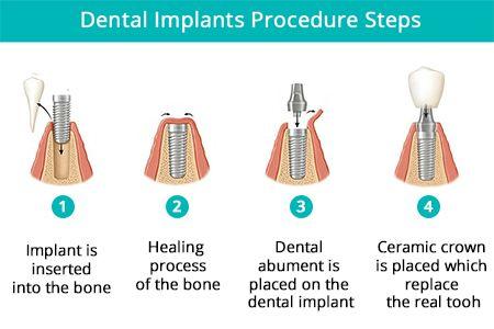 Dental Implant Procedure in Brooklyn