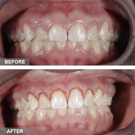 Cosmetic Gingivectomy